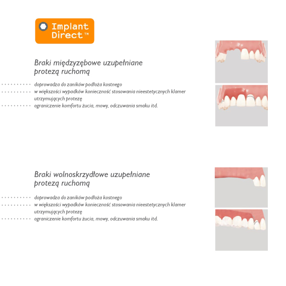 Implant-Direct-system-4